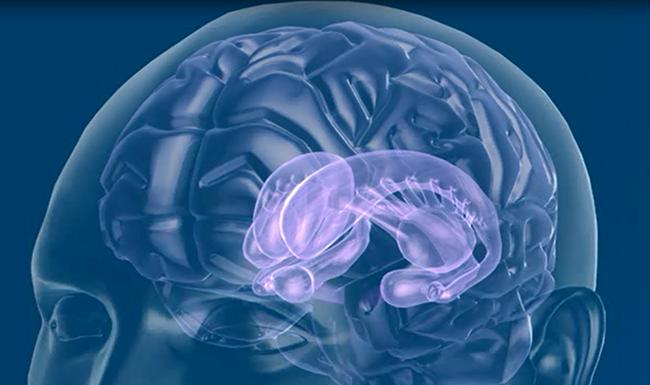 dbsの効果 パーキンソン病の手術療法 脳深部刺激療法 dbs